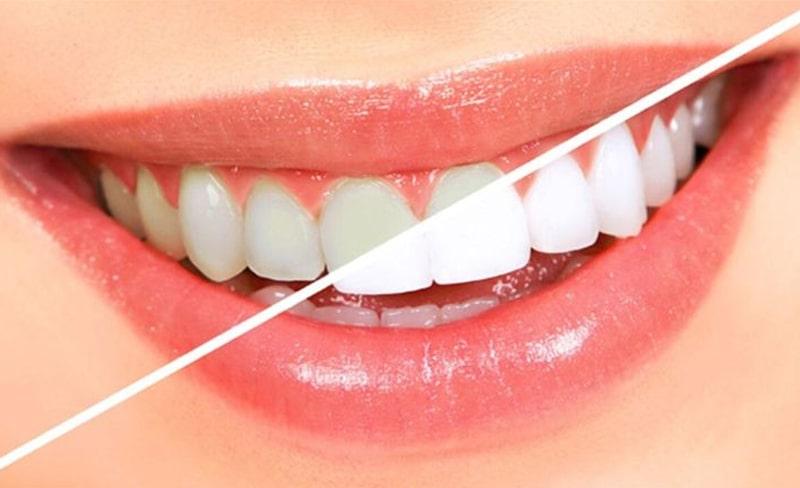 Misvak Diş Beyazlatır mı ?